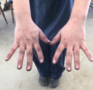 真っ黒になった手